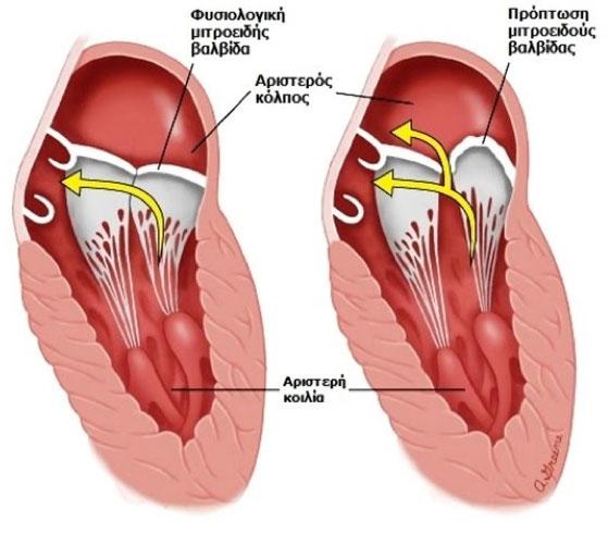Proptosi mitroeidous