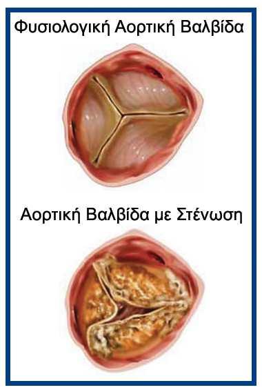 stenosi aortikis