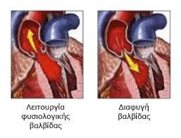 Aneparkeia aortikis varldidas